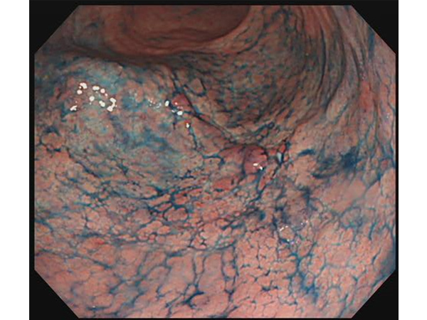 特殊な色素散布(インジゴ散布)によりがんが明瞭になります。